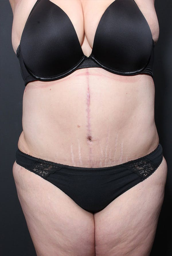 Plus Size Tummy Tuck® Gallery - Patient 14089748 - Image 2