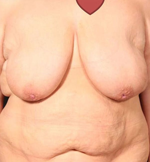 Breast Lift Mastopexy Gallery - Patient 14089747 - Image 3