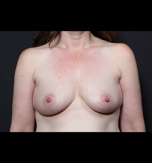 Breast Augmentation Gallery - Patient 14089744 - Image 3