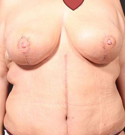 Breast Lift Mastopexy Gallery - Patient 14089747 - Image 4