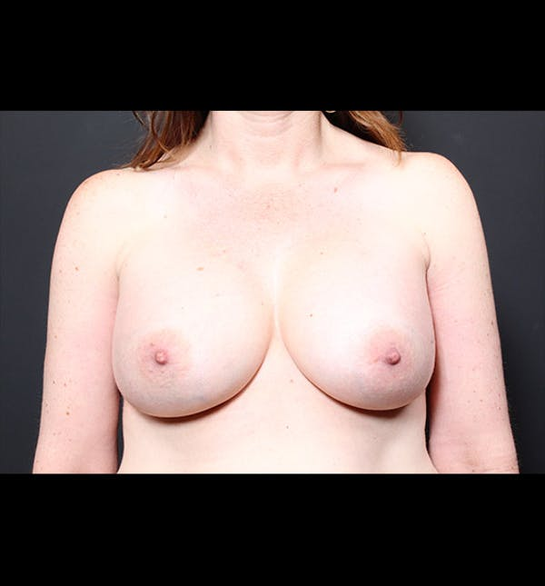 Breast Augmentation Gallery - Patient 14089744 - Image 4