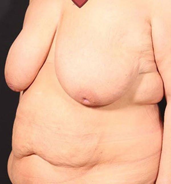 Breast Lift Mastopexy Gallery - Patient 14089747 - Image 5