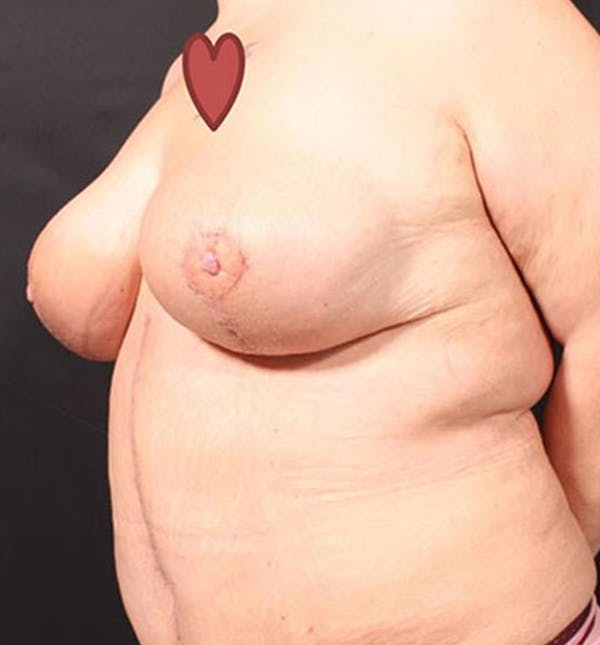Breast Lift Mastopexy Gallery - Patient 14089747 - Image 6