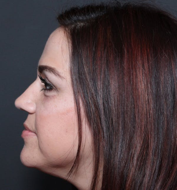 Injectables Gallery - Patient 14089750 - Image 6