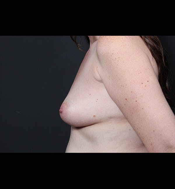 Breast Augmentation Gallery - Patient 14089744 - Image 5
