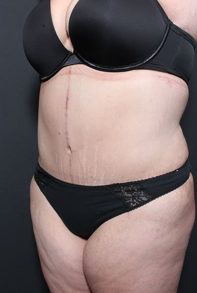 Plus Size Tummy Tuck® Gallery - Patient 14089748 - Image 4