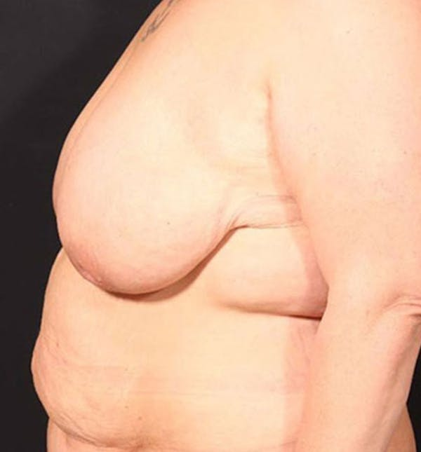Breast Lift Mastopexy Gallery - Patient 14089747 - Image 7