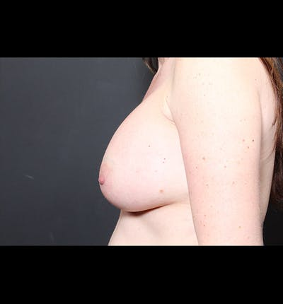 Breast Augmentation Gallery - Patient 14089744 - Image 6