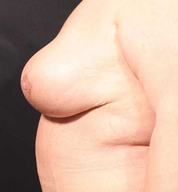 Breast Lift Mastopexy Gallery - Patient 14089747 - Image 8