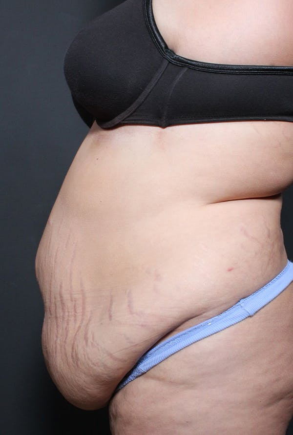 Plus Size Tummy Tuck® Gallery - Patient 14089748 - Image 5