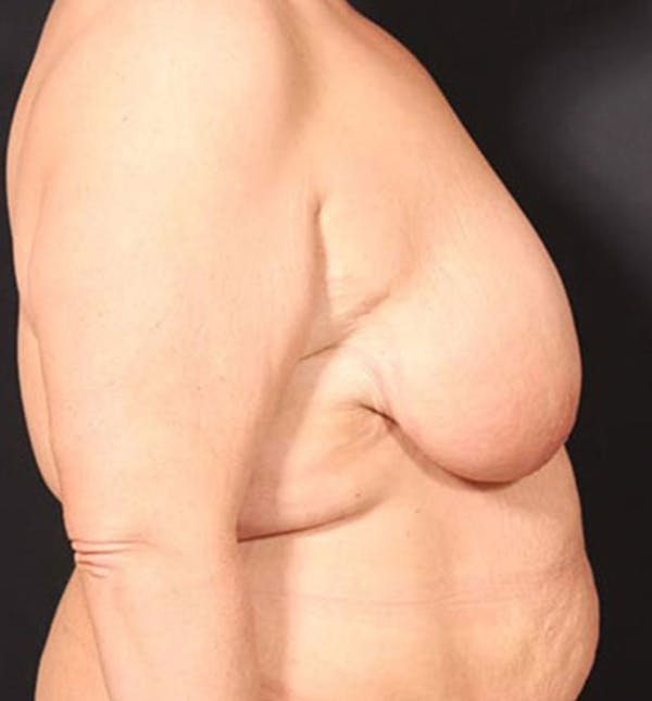 Breast Lift Mastopexy Gallery - Patient 14089747 - Image 9