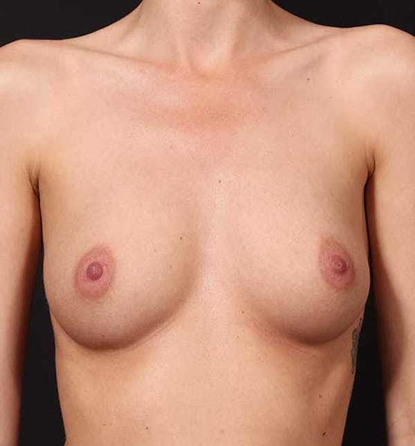 Breast Augmentation Gallery - Patient 14089746 - Image 1