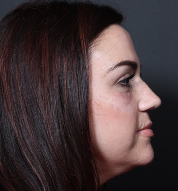 Injectables Gallery - Patient 14089750 - Image 8