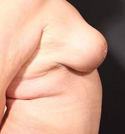 Breast Lift Mastopexy Gallery - Patient 14089747 - Image 10