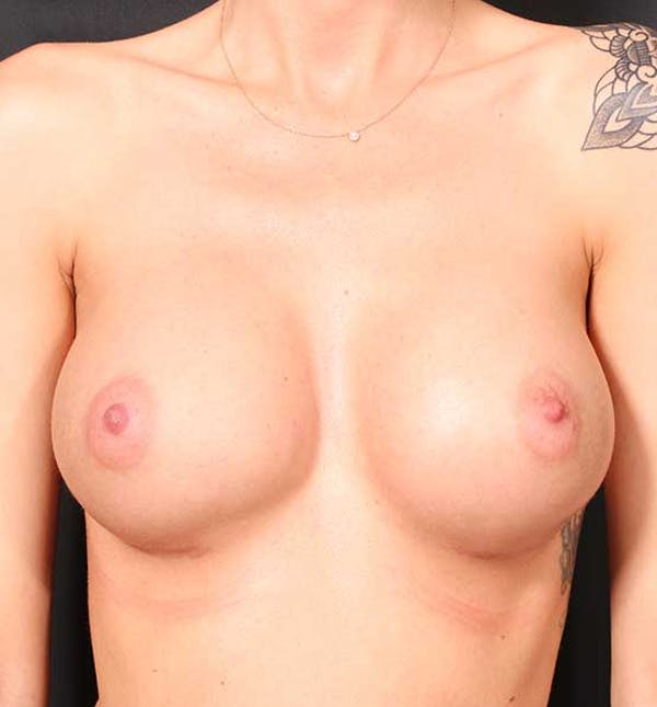 Breast Augmentation Gallery - Patient 14089746 - Image 2