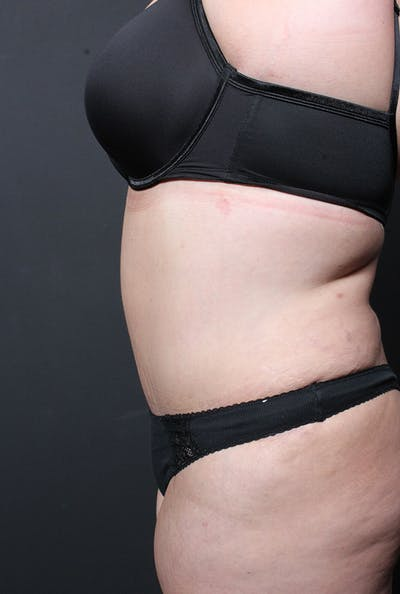 Plus Size Tummy Tuck® Gallery - Patient 14089748 - Image 6