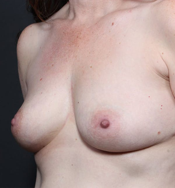 Breast Augmentation Gallery - Patient 14089756 - Image 1