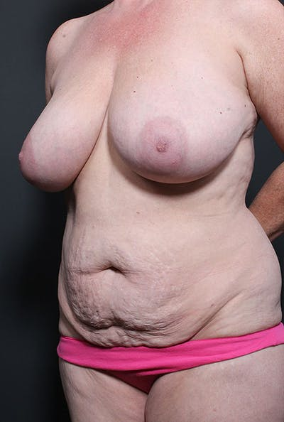 Mommy Makeover Gallery - Patient 14089752 - Image 1