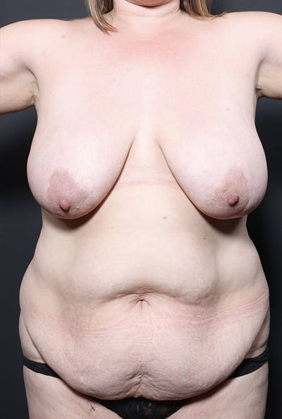 Plus Size Tummy Tuck® Gallery - Patient 14089754 - Image 1