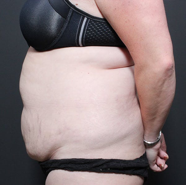 Liposuction Gallery - Patient 14089753 - Image 5