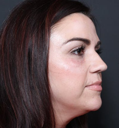 Injectables Gallery - Patient 14089750 - Image 10