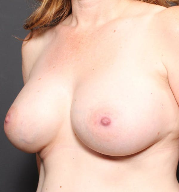 Breast Augmentation Gallery - Patient 14089756 - Image 2