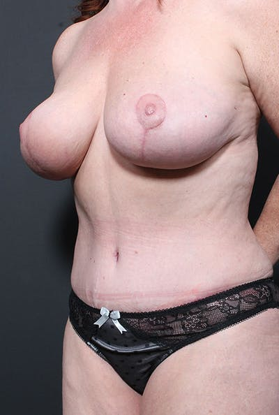 Mommy Makeover Gallery - Patient 14089752 - Image 2