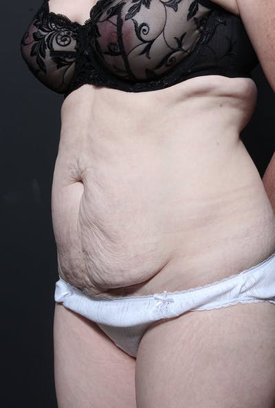 Tummy Tuck Gallery - Patient 14089755 - Image 1