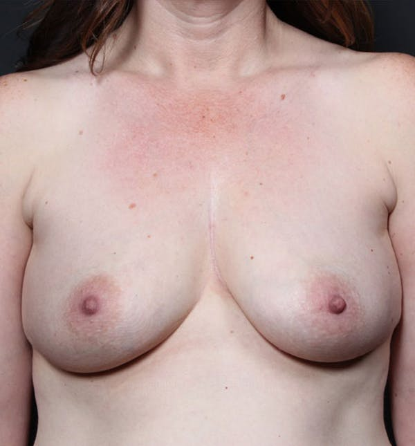 Breast Augmentation Gallery - Patient 14089756 - Image 3
