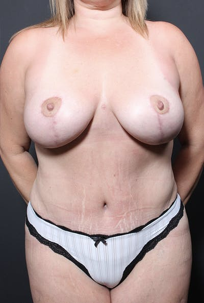 Plus Size Tummy Tuck® Gallery - Patient 14089754 - Image 2