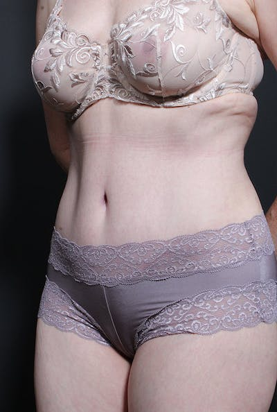 Tummy Tuck Gallery - Patient 14089755 - Image 2