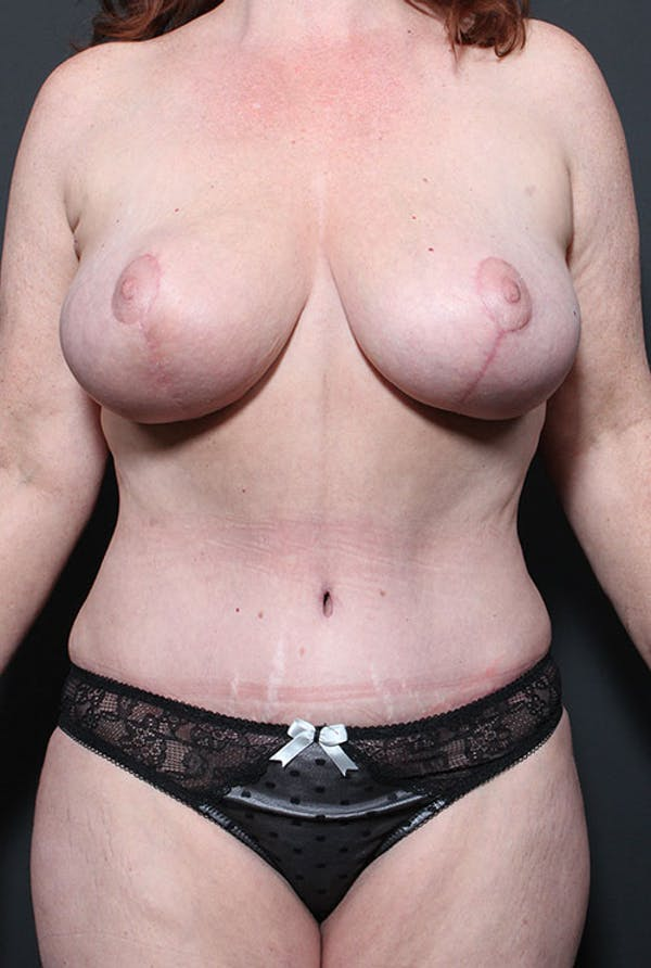 Mommy Makeover Gallery - Patient 14089752 - Image 4