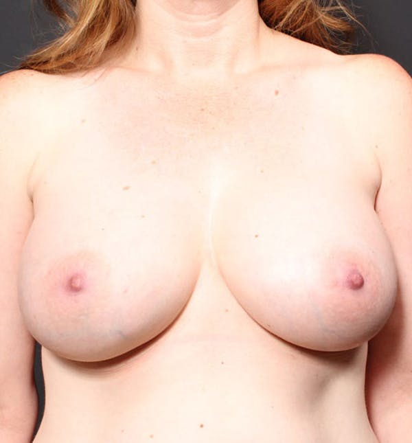 Breast Augmentation Gallery - Patient 14089756 - Image 4