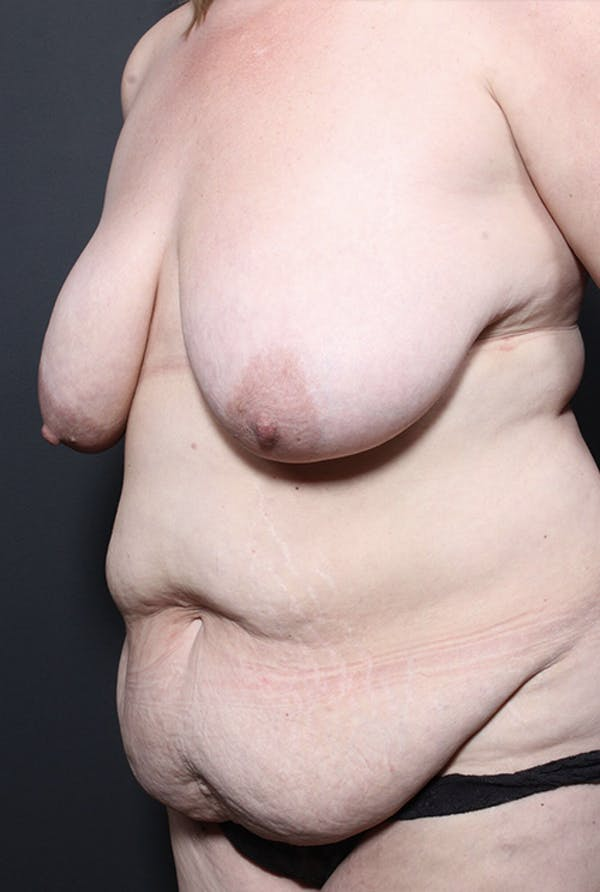 Plus Size Tummy Tuck® Gallery - Patient 14089754 - Image 3