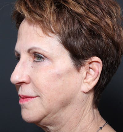 Injectables Gallery - Patient 14089760 - Image 2