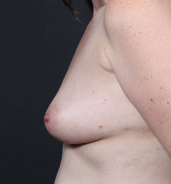 Breast Augmentation Gallery - Patient 14089756 - Image 5