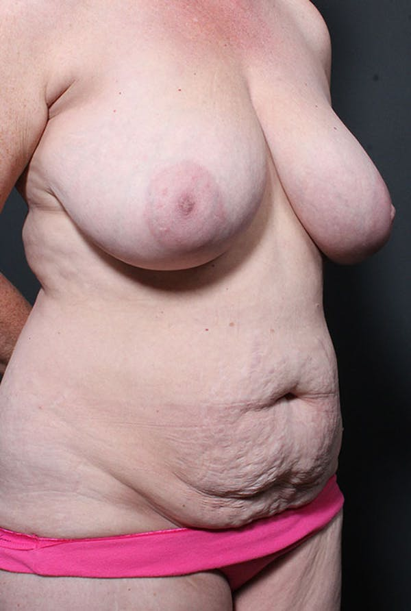Mommy Makeover Gallery - Patient 14089752 - Image 5