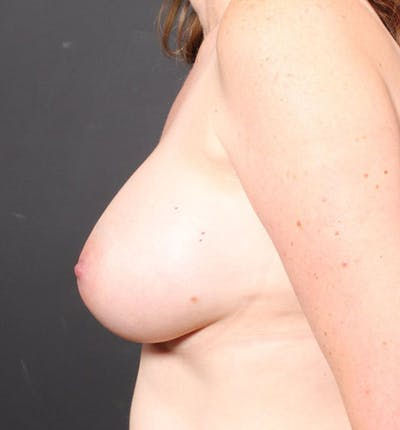 Breast Augmentation Gallery - Patient 14089756 - Image 6