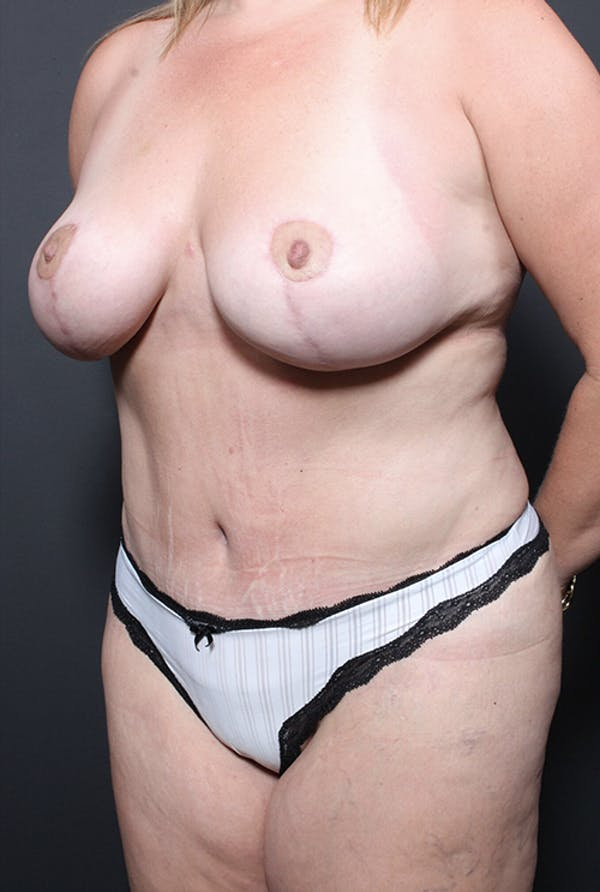 Plus Size Tummy Tuck® Gallery - Patient 14089754 - Image 4