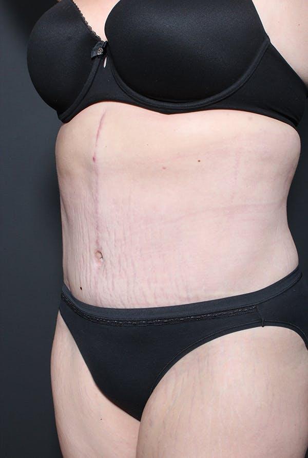 Hernia Rectus Diastasis Repair Gallery - Patient 14089758 - Image 2