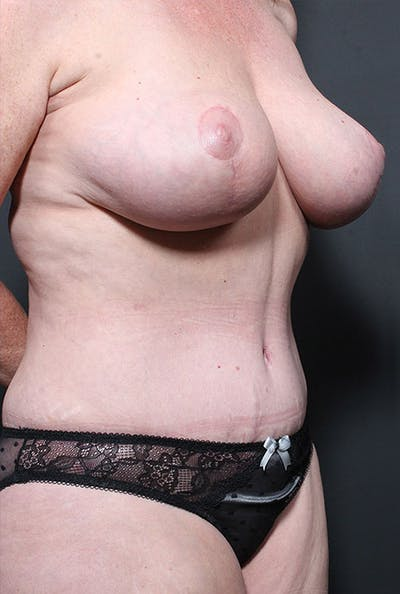 Mommy Makeover Gallery - Patient 14089752 - Image 6