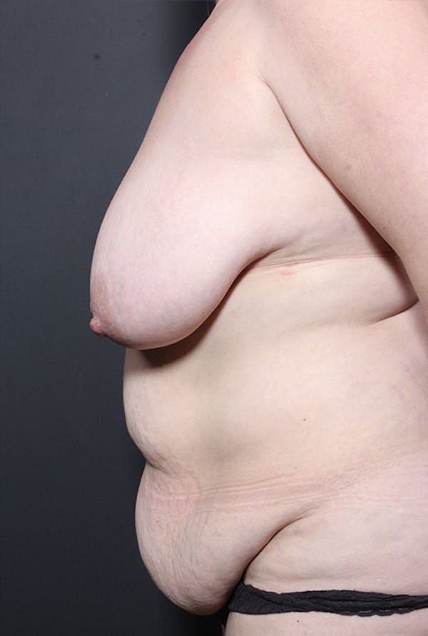 Plus Size Tummy Tuck® Gallery - Patient 14089754 - Image 5