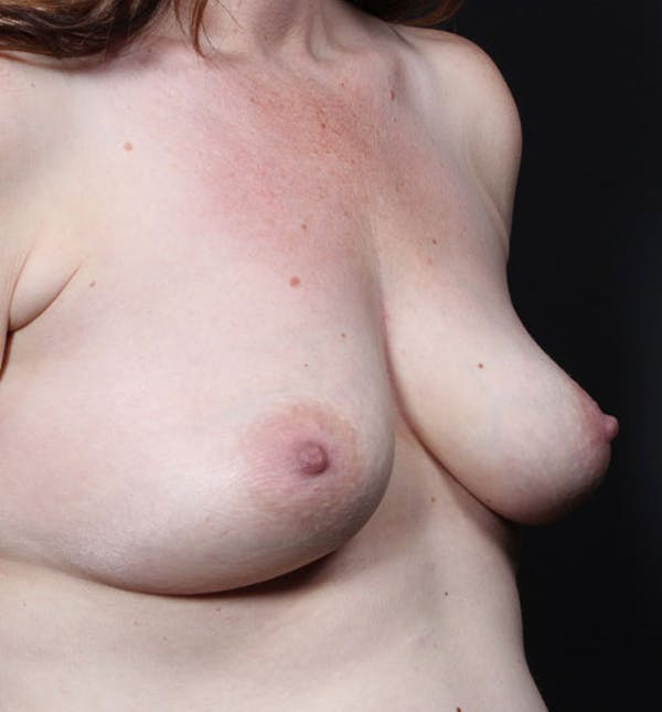 Breast Augmentation Gallery - Patient 14089756 - Image 7