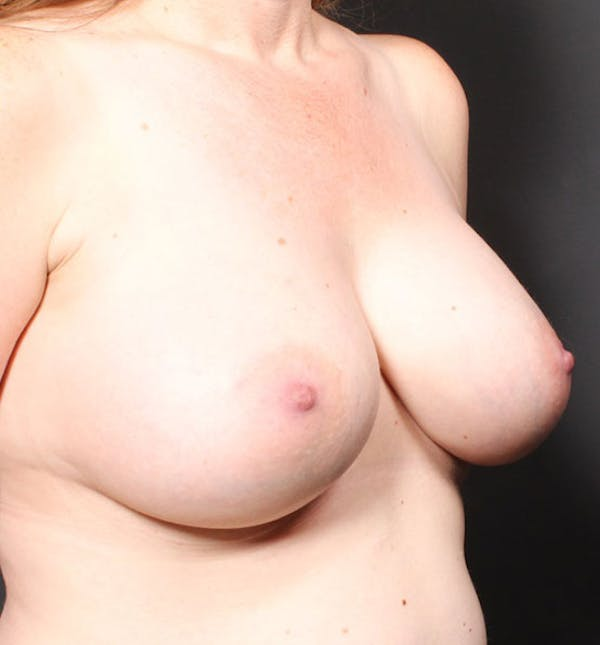 Breast Augmentation Gallery - Patient 14089756 - Image 8
