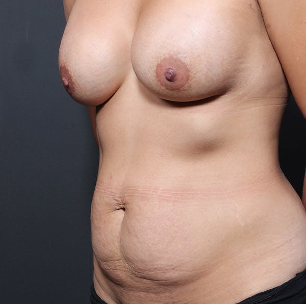 Mommy Makeover Gallery - Patient 14089764 - Image 1