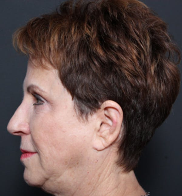 Injectables Gallery - Patient 14089760 - Image 5