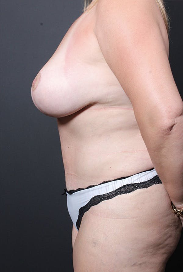 Plus Size Tummy Tuck® Gallery - Patient 14089754 - Image 6