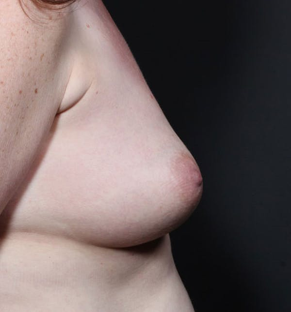 Breast Augmentation Gallery - Patient 14089756 - Image 9