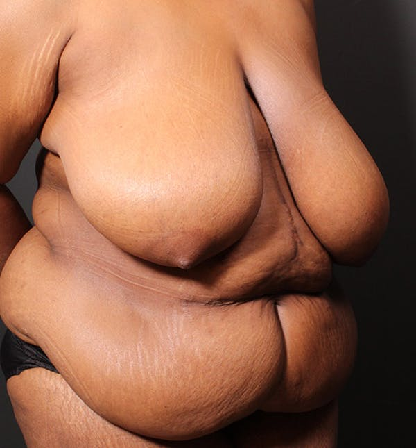 Breast Lift Mastopexy Gallery - Patient 14089757 - Image 7