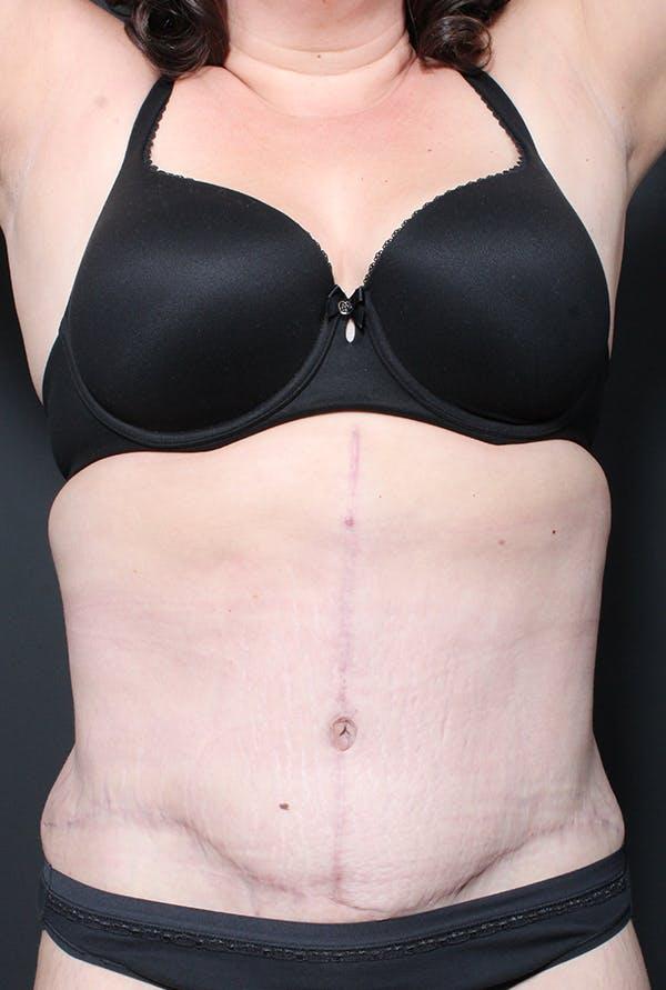 Hernia Rectus Diastasis Repair Gallery - Patient 14089758 - Image 4